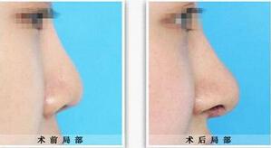 鼻尖整形優勢有哪些