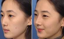 医学鼻尖整形手术效果怎样