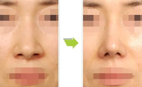 鼻翼縮小整形注意事項