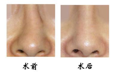 隆鼻手术多长时间完全恢复