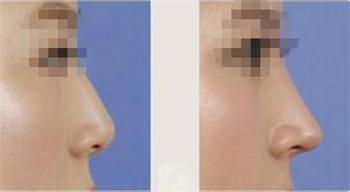 達拉斯鼻整形效果好嗎