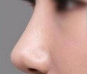 熹亚婕熹卡:自体软骨隆鼻效果能保持多久