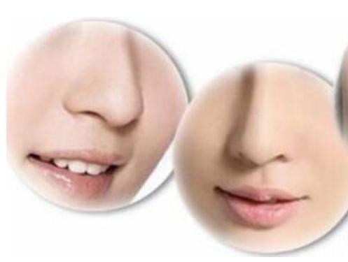 成都武侯区熹亚婕熹卡:自体软骨隆鼻手术的优势是什么
