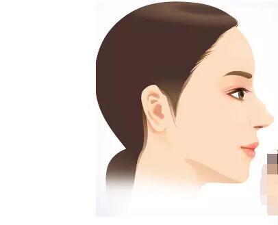 驼峰鼻怎么改善