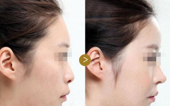 做个线雕鼻子能维持多久图片
