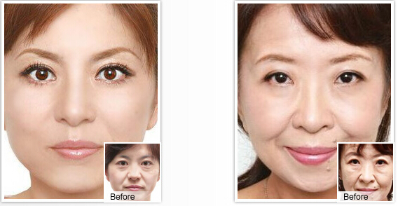 光波拉皮除皱美容有没有副作用的