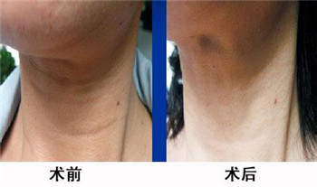 光波拉皮除皺美容手術效果怎樣