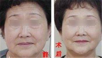 激光除皱美容维持时间多长