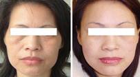 广州美容 有效消除皱纹的方法是什么