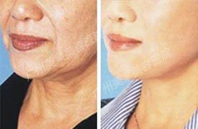 女性脖子上的颈纹怎么去除