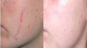 瘢痕修復美容手術如何