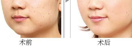 果酸换肤美容能维持多久