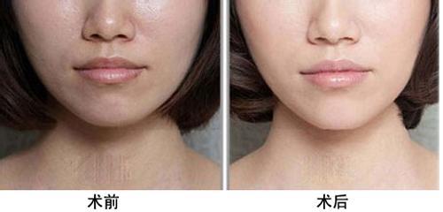 果酸换肤美容多久见效果