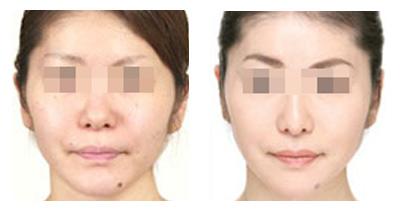 醫學激光美白美容手術安不安全