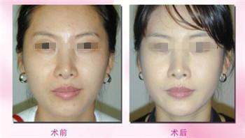 激光美白美容手术费用要多少
