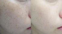 脸部激光除斑多少钱