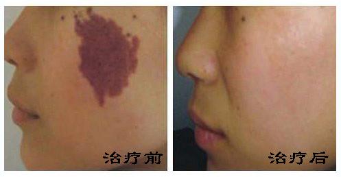 荆州医院激光祛除红胎记贵不贵?