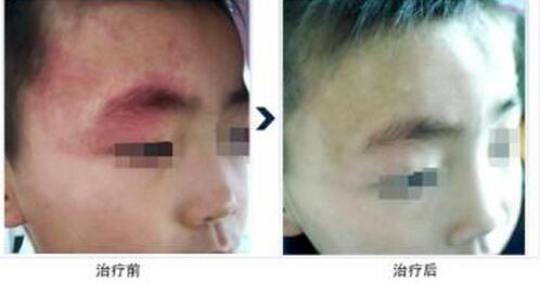 荆州医院可以祛除小孩脸上的红色胎记吗?
