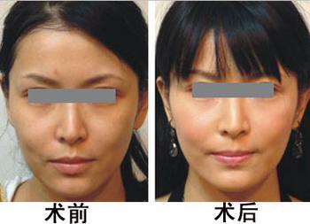 广州美容 光子嫩肤会不会有副作用