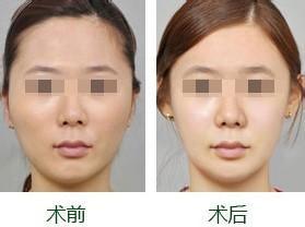 Botox除皱美容手术怎么样