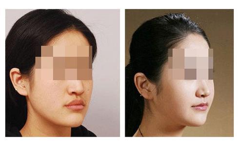 据调查 近6成女性认为自己的下巴不好看