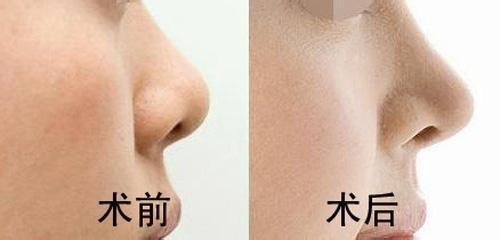 广州注射隆鼻多久见效