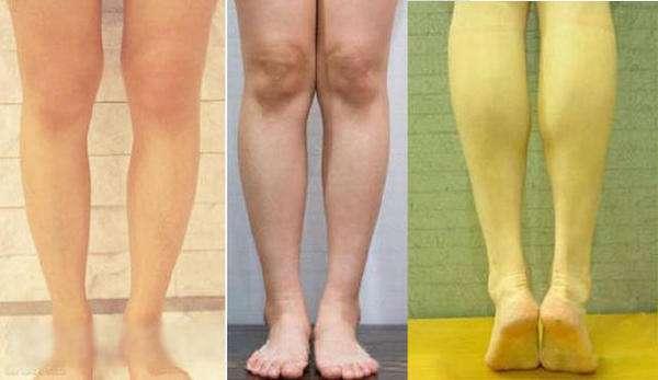 怎么可以快速瘦腿