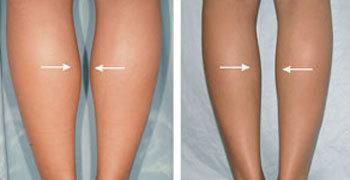 腿部吸脂可以让粗腿变瘦吗