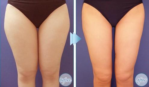 腿部吸脂减肥能维持多久