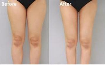 怎样减肥才能瘦大腿,腿部吸脂