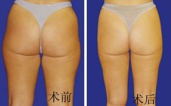 臀部吸脂节食有风险吗