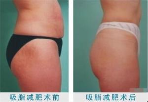 臀部吸脂减肥有没有危害