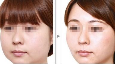 吸脂瘦脸美容需要多少费用