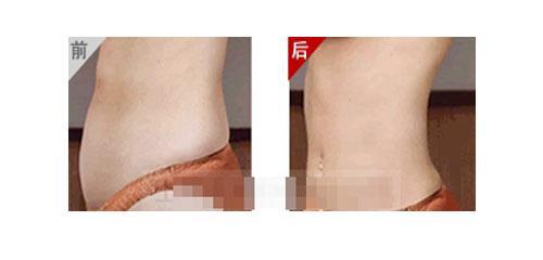 广州美容 全身减肥*快的方法