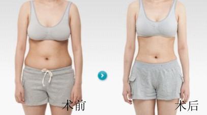 广州哪做到腰腹部吸脂效果好