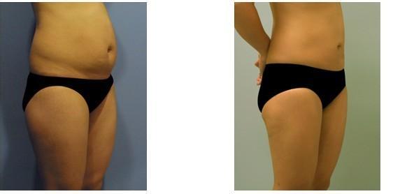 腹部吸脂减肥术会反弹吗