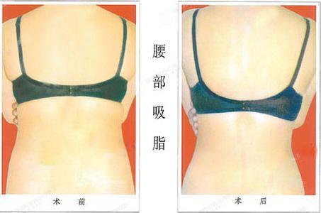 广州腰腹部减肥的*好方法