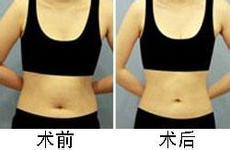 腹部吸脂減肥塑形效果嗎