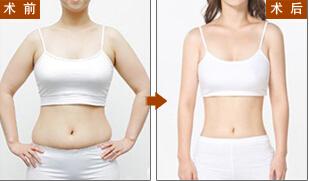 做到腹部吸脂节食塑形多少钱