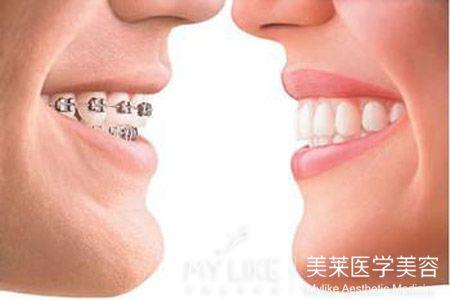 广州儿童牙齿矫正的好处 把美丽带回家