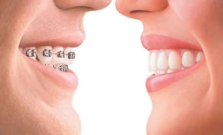 广州牙齿矫正多少钱