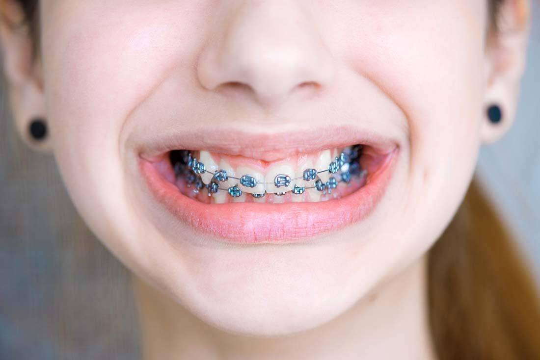 河源暴牙矫正牙齿需要拔牙吗