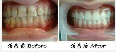 广州整形 牙齿蜡黄怎么办