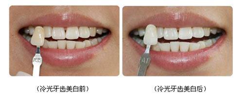广州美容 怎样可以使牙齿变白