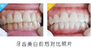 医学牙齿美白价格贵吗