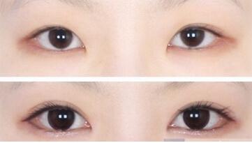 开眼角美容手术如何