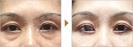 祛眼袋黑眼圈有哪些有效方法