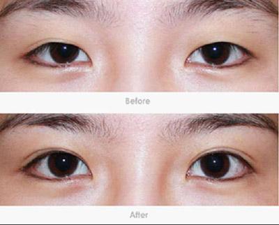显韩双眼皮,为眼睛再配魅力
