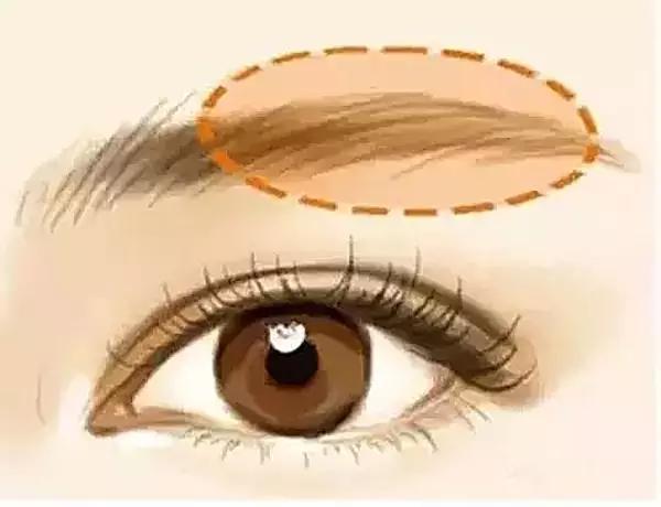 美莱欧式双眼皮效果好吗