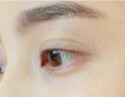 成都婕熹卡:全切双眼皮术后需要注意的事项